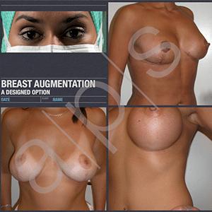Bröst ärrplaceringar